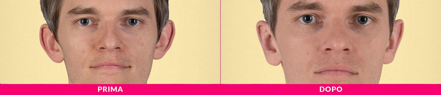 otoplastica, orecchie a sventola, earfold milano